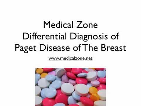 Medical Zone -  Differential Diagnosis Of Paget Disease Of The Breast