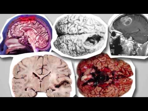Менингит - лечение болезни. Симптомы и профилактика
