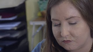 Dermatillomania #SkinPicking #SkinPickingDisorder Thank you so much for checking out this video - as.