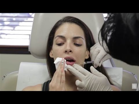 Lip Augmentation Before and After | Restylane® | Juvederm® - Beverly Hills