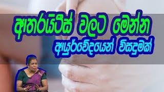 ආතරයිටීස් වලට මෙන්න ආයුර්වේදයෙන් විසදුමක් | Piyum Vila | 14 - 08 -2020 | Siyatha TV Thumbnail