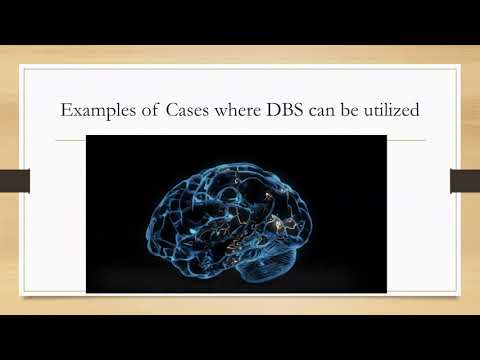 Whats New In Epilepsy Surgery: Deep Brain Stimulation