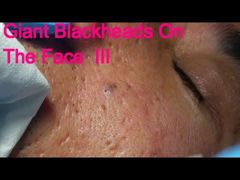 Giant Blackheads On The face  - Part III -
