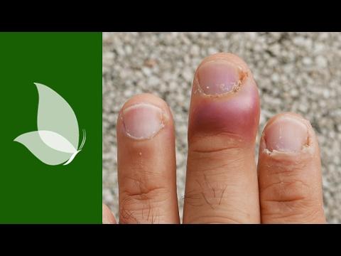 Las uñas, estropeadas por el hongo, los medios públicos