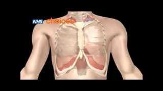 видео Аллергическая астма - бронхиальная, лечение, симптомы у взрослых, признаки