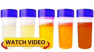 Notice! Your Urine color says a lot about your health, this is what your color means!