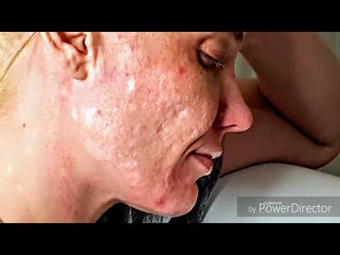Get Rid Of Deep Acne Scars At Home
