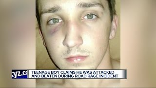 Teenage boy claims he was attacked and beaten during road rage incident
