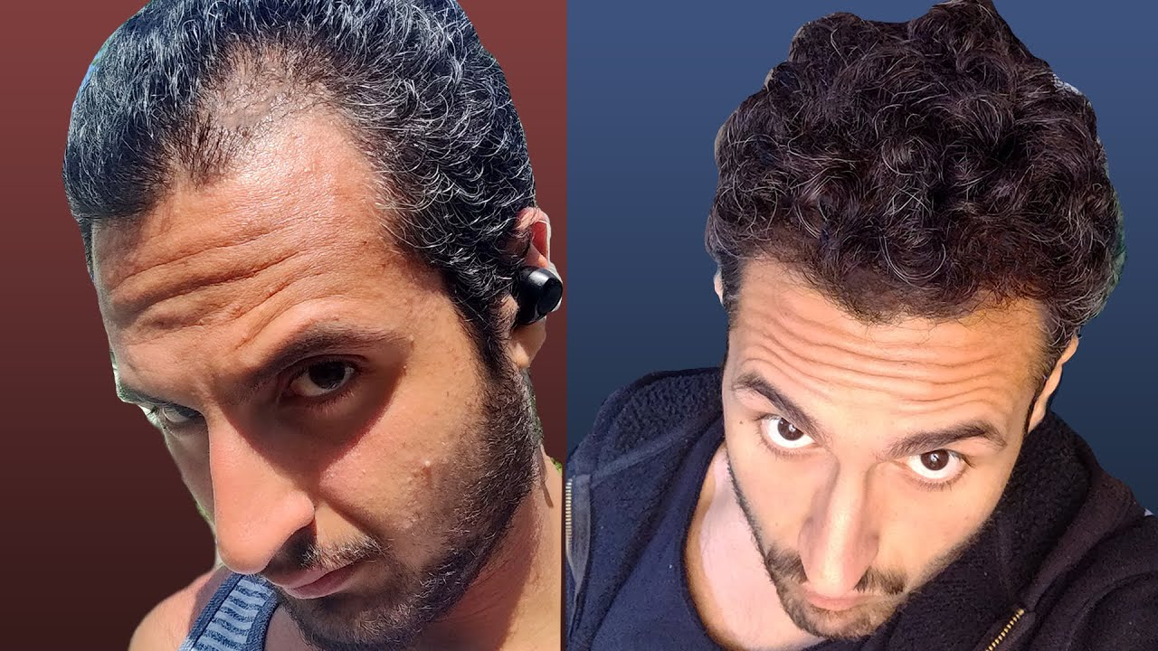 Does NoFap Cure Hair Loss? - YouTube