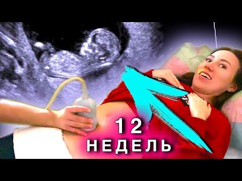 УВИДЕЛИ МАЛЫША - Мальчик ИЛИ Девочка ? Третье УЗИ 12 Недель 1 Скрининг - Я БЕРЕМЕННА | Elli Di