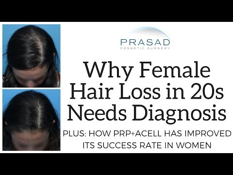 Why Hair Loss In Women In The 20s Needs Diagnosis, And Improved Success Rate Of ACell+PRP Treatment