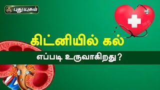 Doctor On Call 02-10-2020 Puthuyugam Tv