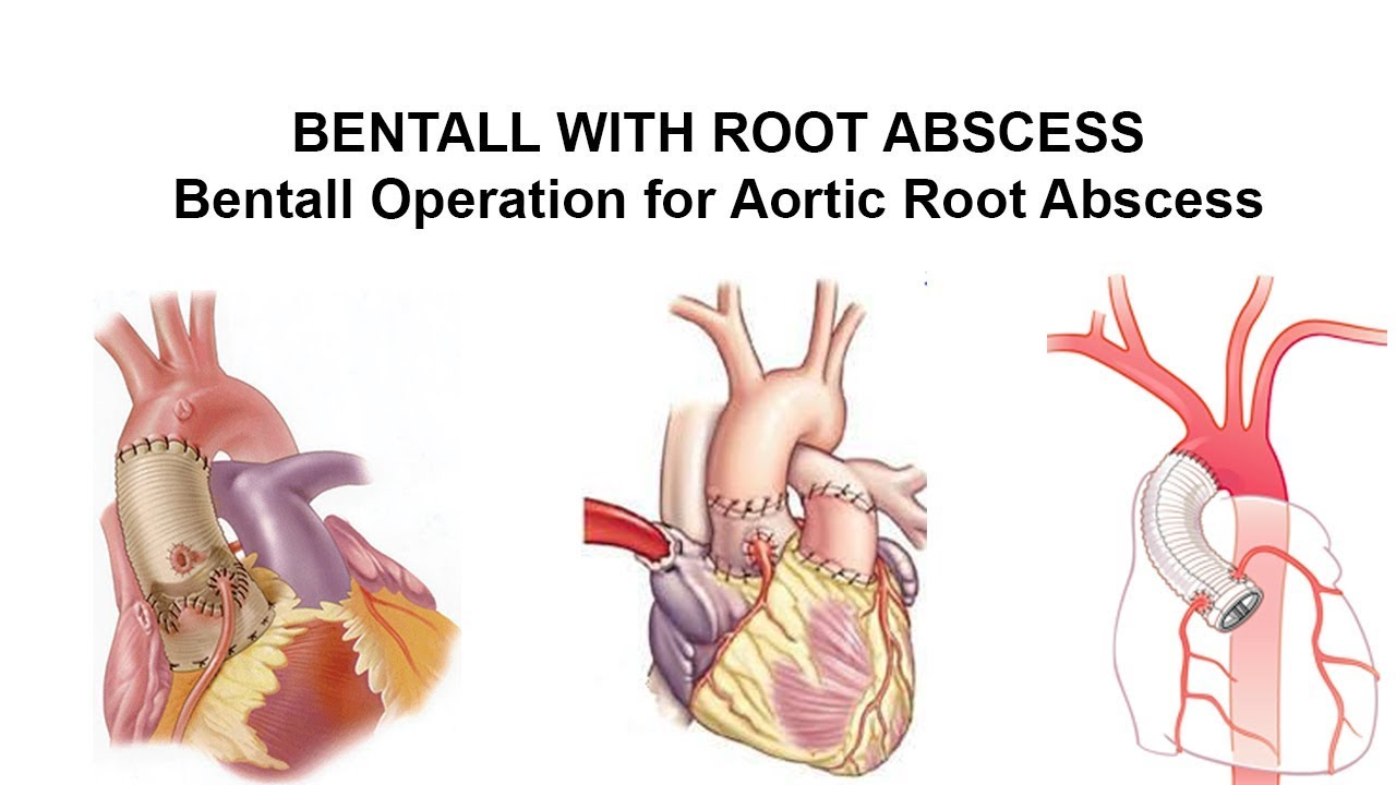 BENTALL WITH ROOT ABSCESS - Bentall Operation for Aortic Root ...