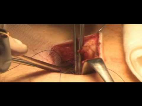 Umbilical Hernia - repair using mesh