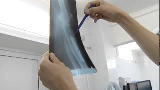 видео Городская клиническая больница № 70