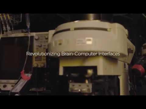 Revolutionizing Brain-Computer Interfaces