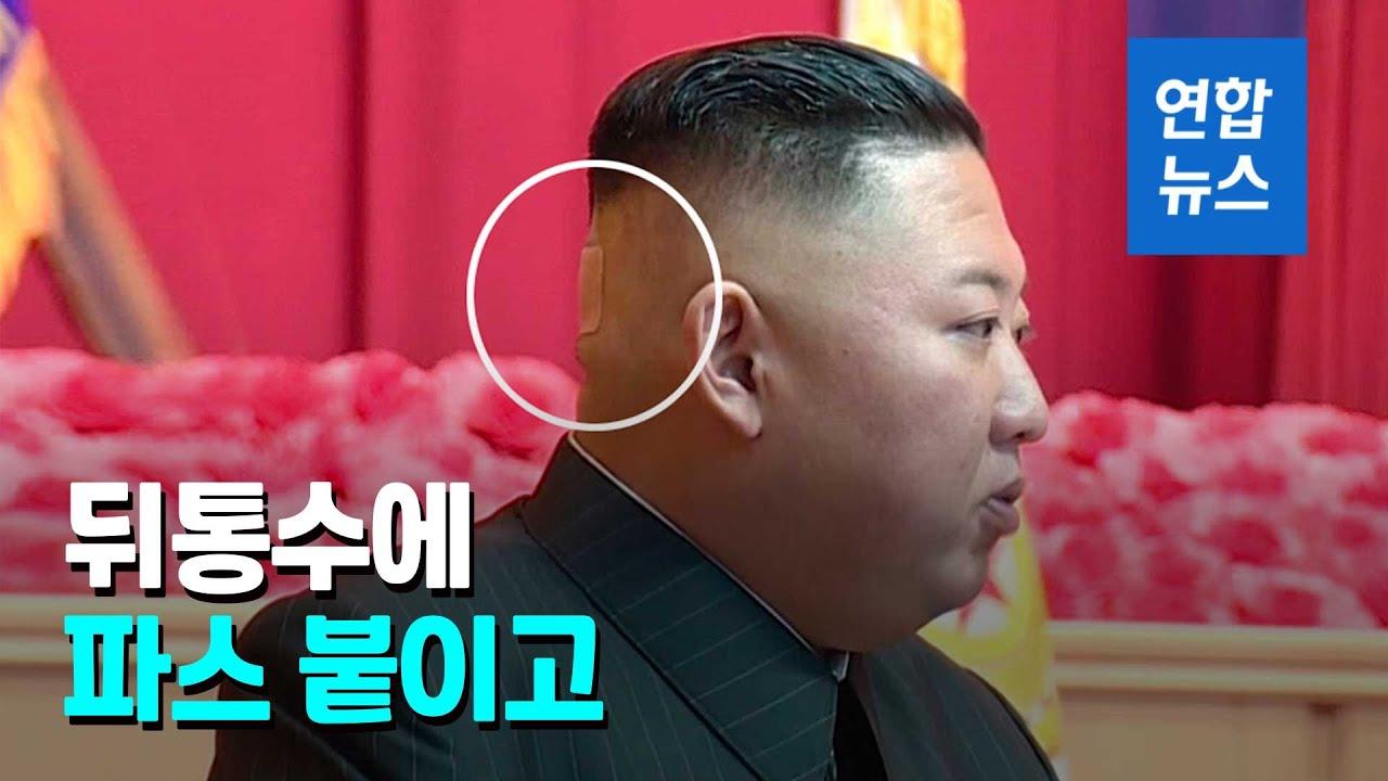 뒤통수에 파스 붙인 김정은…파스 뗀 자리에는  / 연합뉴스 (Yonhapnews)