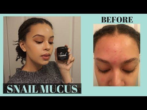 hqdefault - Snail Cream For Acne Review