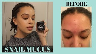 i Used Snail Cream on My Face for 2 Weeks  Mizon Black Snail Cream Review