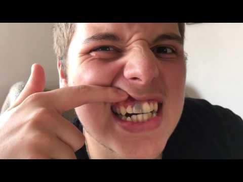Ben Phillips | How I got my black tooth...