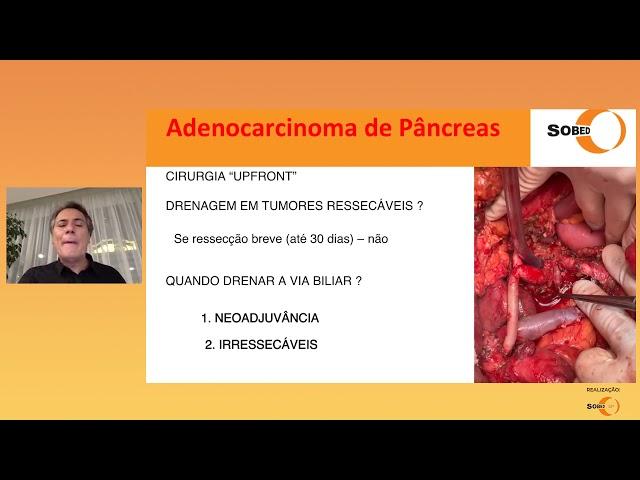 Estadiamento de Tumor - Cirurgião HPB e Endoscopista