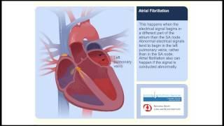 Video Atrial Fibrillation Animation Video download MP3, 3GP, MP4, WEBM, AVI, FLV November 2017