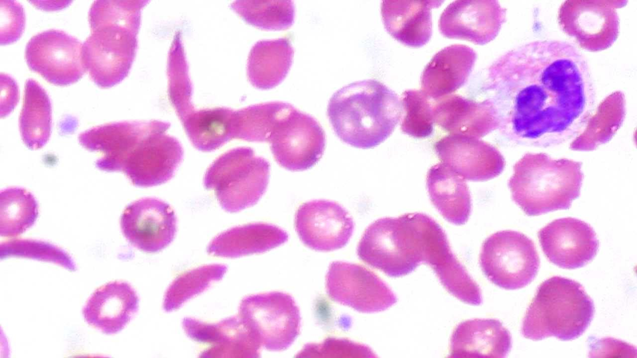 Sickle Cell Anemia -- not evidence for evolution by CMIcreationstation