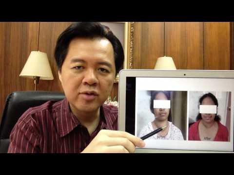Walang Pera at May Bukol sa Suso - ni Doc Claudine Ordonez #4 (Surgeon) from YouTube · Duration:  2 minutes 35 seconds
