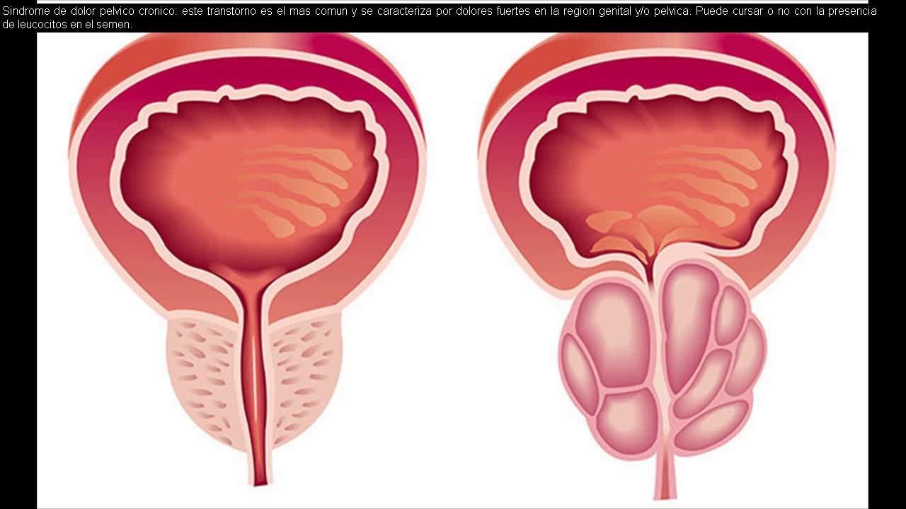Masajes de prostata
