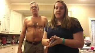 EKG Electrode Placement-Resting and Exercise