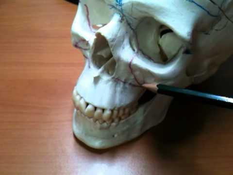 lefort osteotomies