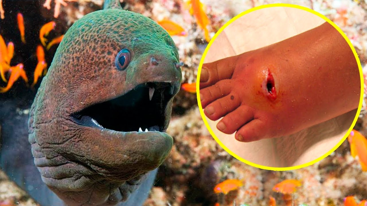 The Most POISONOUS And VENOMOUS FISHES In The World 🐡