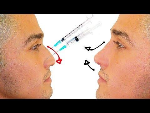 Aguilena nariz sin como la cirugia quitar