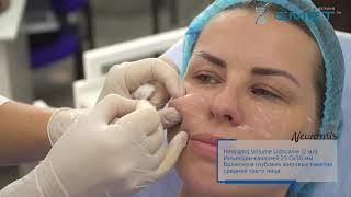 Филлеры Neuramis. Контурная пластика средней трети лица.