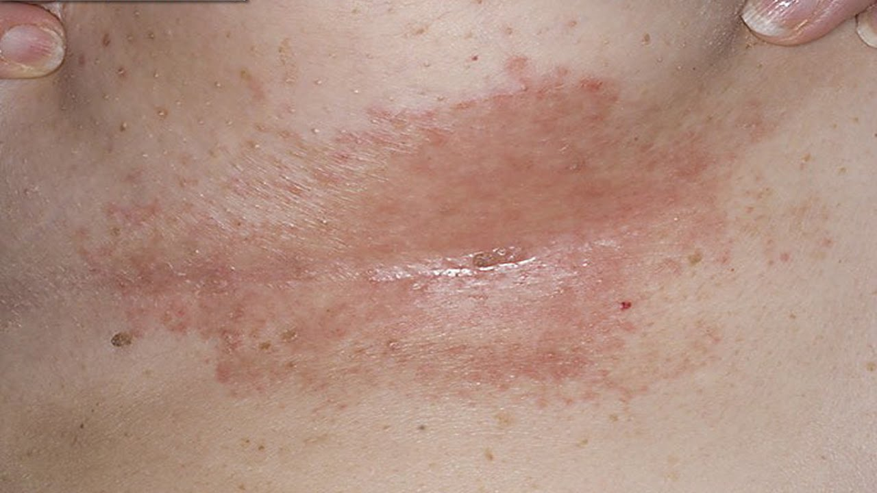 Rash pictures breast under