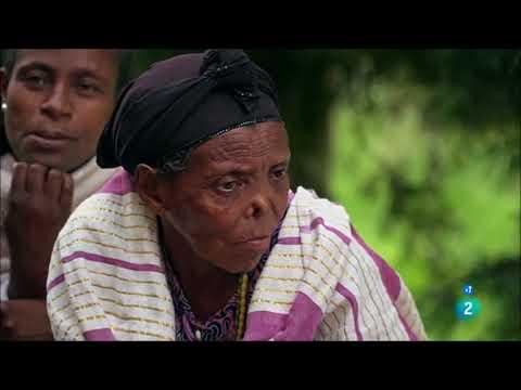 Las personas con lepra que no tienen lepra, rompiendo el estigma africa etiopia gambo
