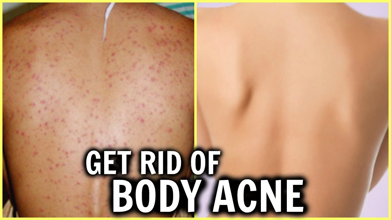 How To Get Clear Glowing Spotless Skin Get Rid Of Pimples Small Bumps Acne Body Acne Youtube