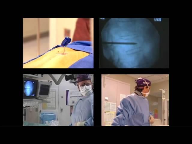 Vertebroplasty Procedure Demonstration