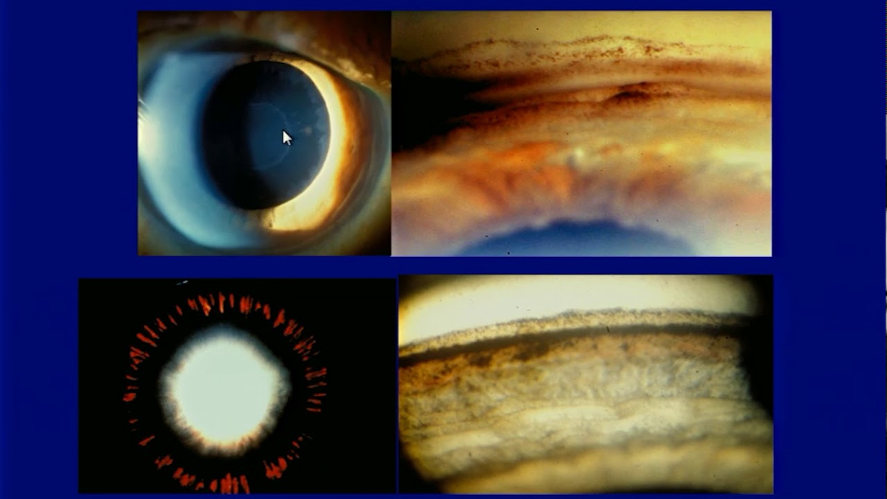 Neuroprotection and neuroregeneration in glaucoma