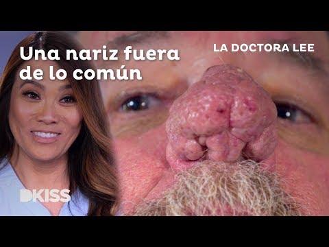 La Doctora Lee Y La Rinofima
