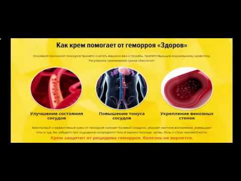 Внутренний геморрой: симптомы, диагностика, лечение