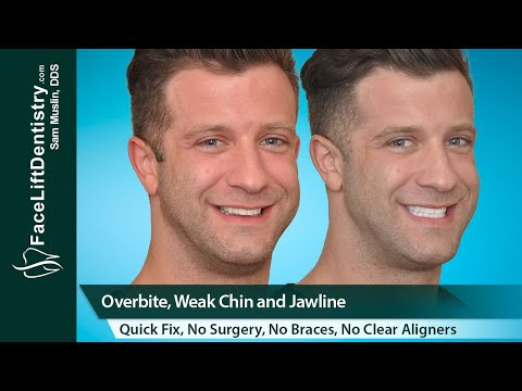 Weak Chin, Jaw, and Overbite Correction
