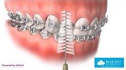 Oral Hygiene with Braces