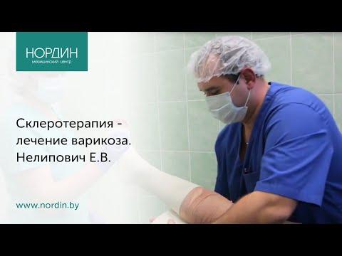 Склеротерапия - лечение варикоза. Нелипович Е.В., Нордин