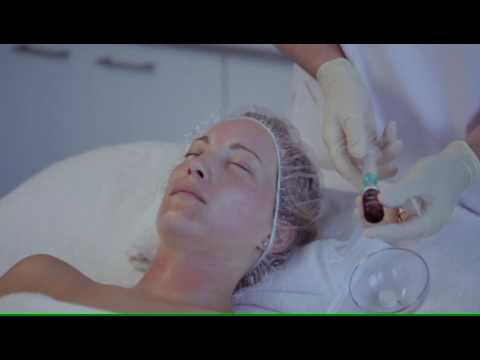 Fusion Fractional Meso - Face