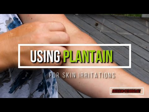 plantain-for-ticks,-chiggers,-burns,-ivy