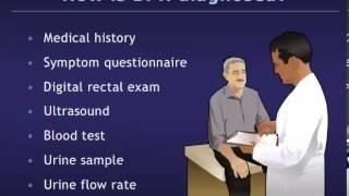 Understanding Benign Prostatic Hyperplasia (BPH)