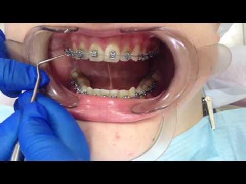 Зубы после снятия брекетов болят зубы