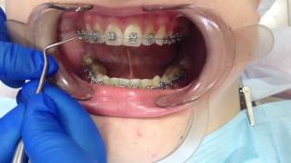 Снятие брекетов и чистка зубов(, 2016-12-05T16:55:16.000Z)