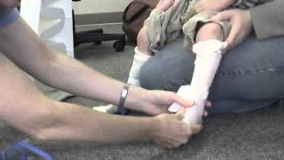 Nick: Low Tone Supination, Excessive Plantarflexion